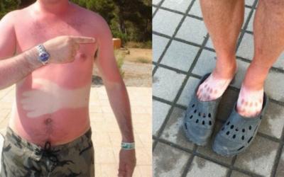 20 самых смешных и необычных солнечных ожогов