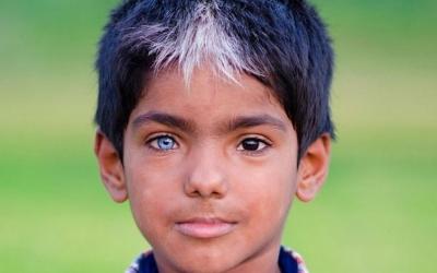 Уникальная генетика: 30 людей с очень нестандартной внешностью