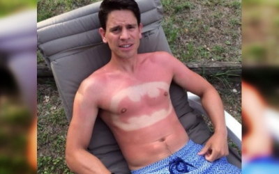 Жертвы солнечных лучей: 30 людей со смешным загаром